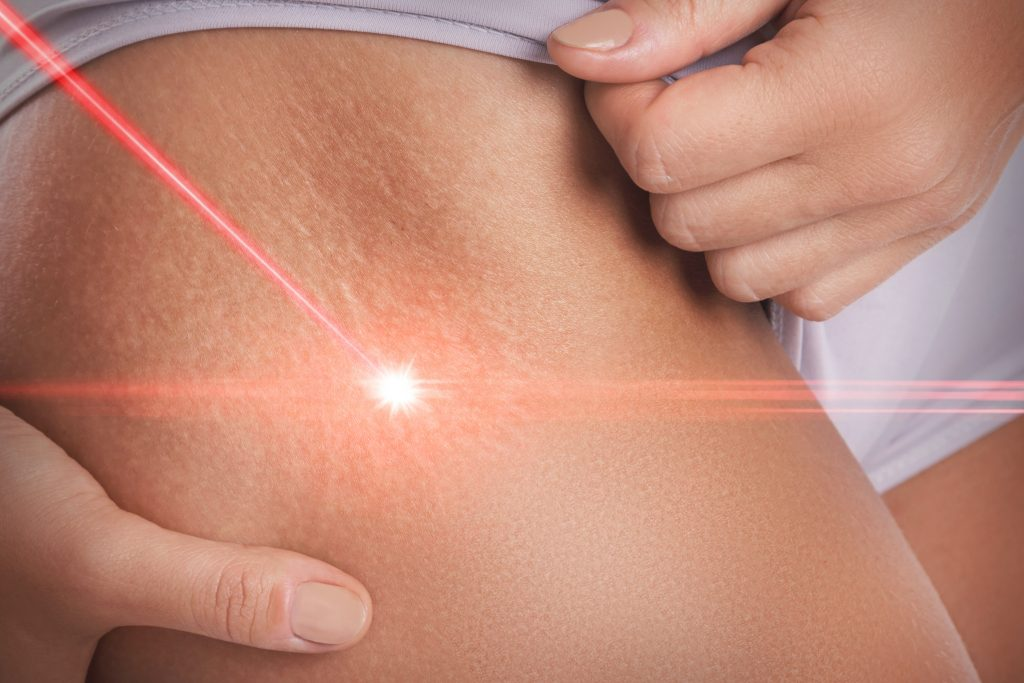 stretch marks from weight loss