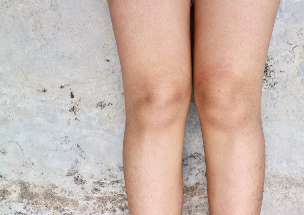 how to get rid of above the knee fat