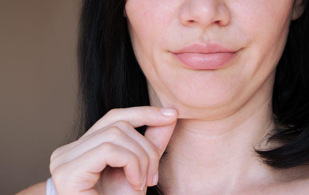 loose skin or fat